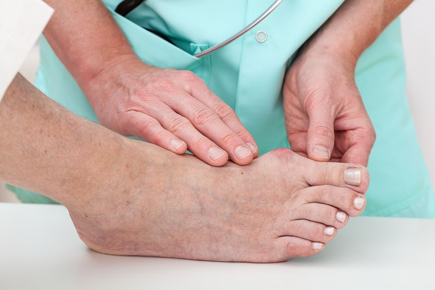 22245507_M_Diabetes_Bunion_Doctor_Patient_Feet.jpg