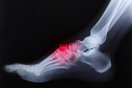 43469008_S_xray_foot_broken_right.jpg