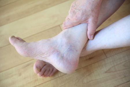 50161251_S_senior_man_feet.jpg