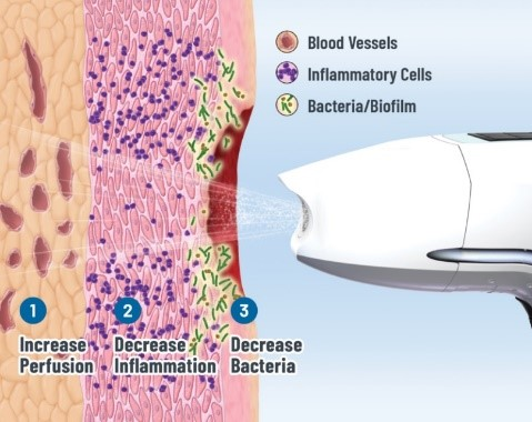 LESIONS/ULCERS - ULTRASOUND MIST THERAPY