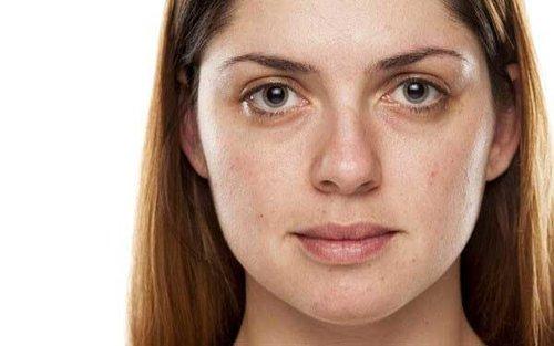 eyebags 2.jpg