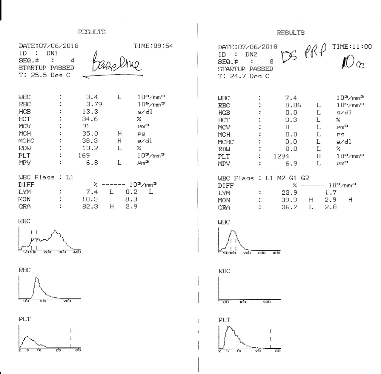 PRP analysis - CBC with 3-Part Diff and histograms showing characterization of our leukocyte rich PRP preparation.