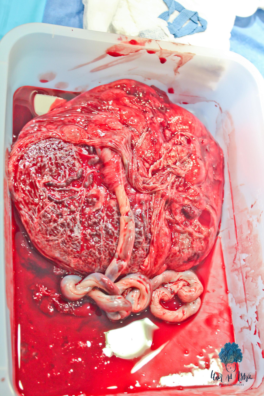 doula-placenta-health
