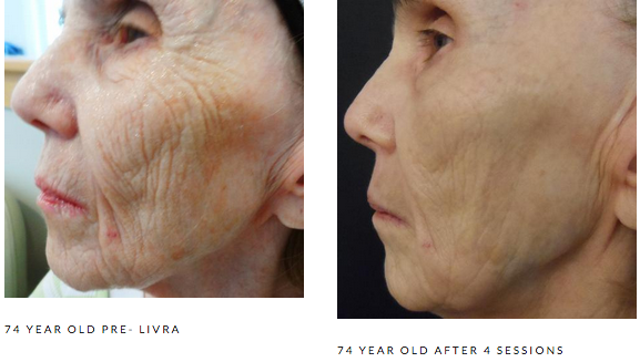 Photo Courtesy of our Growth Factor Serum Manufacturer