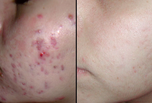 acne-before-and-after.jpg