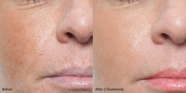 Microneedling-before-and-after (1).jpg
