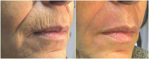 micro-needling-before-and-after-4.jpg-e1441304414644.png