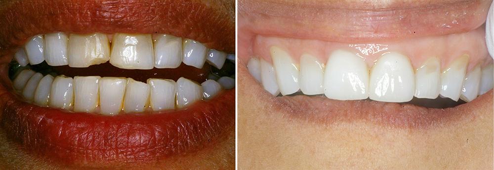 Chipped Tooth & Veneers