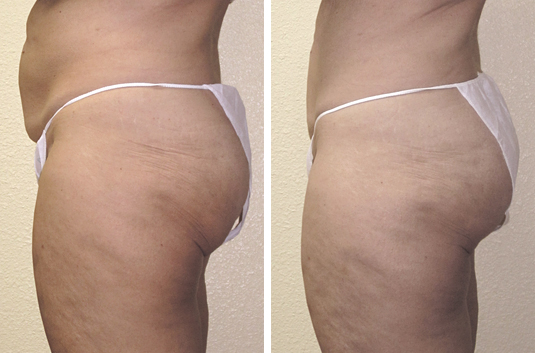 In 5-weeks, after (10) Body Sculpt treatments:  • Waistline reduction and cinching in back • Lifted glutes • Flattened abdominal