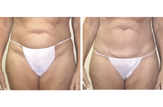 In 5-weeks, after (10) Body Sculpt treatments:  • Waistline reduction • Lifted navel • Flattened abdominal