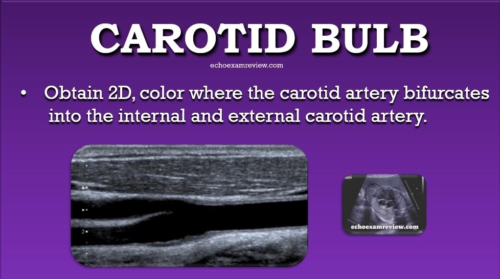 Carotid Artery Bulb