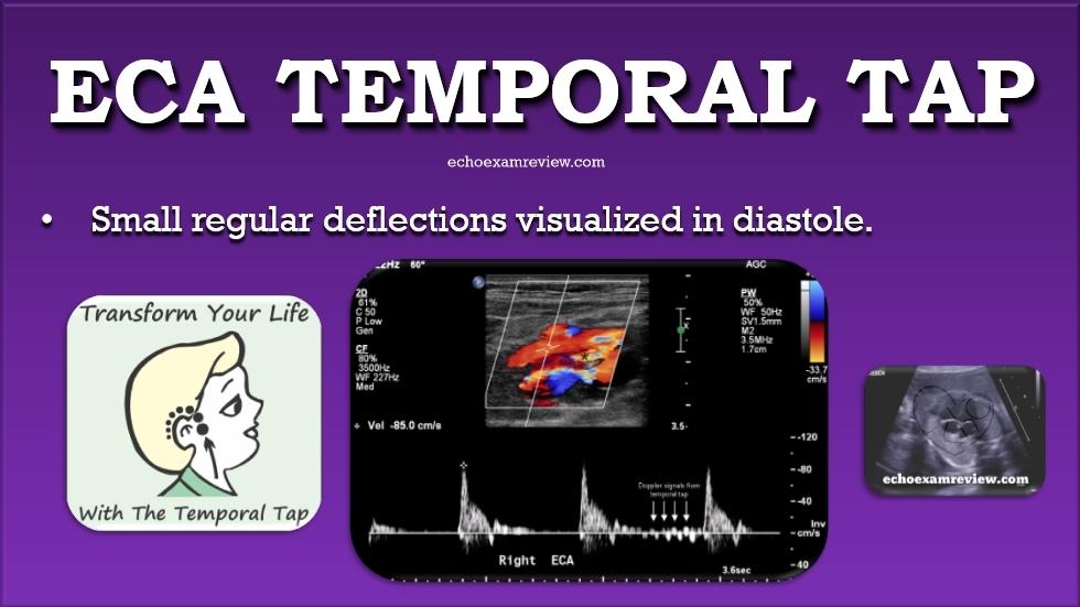 Temporal Tap