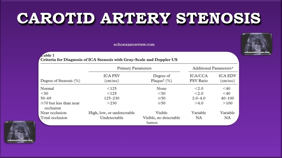 Criteria for Diagnosis of ICA Stenosis