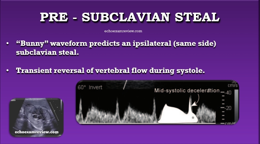 Pre- Subclavian Steal