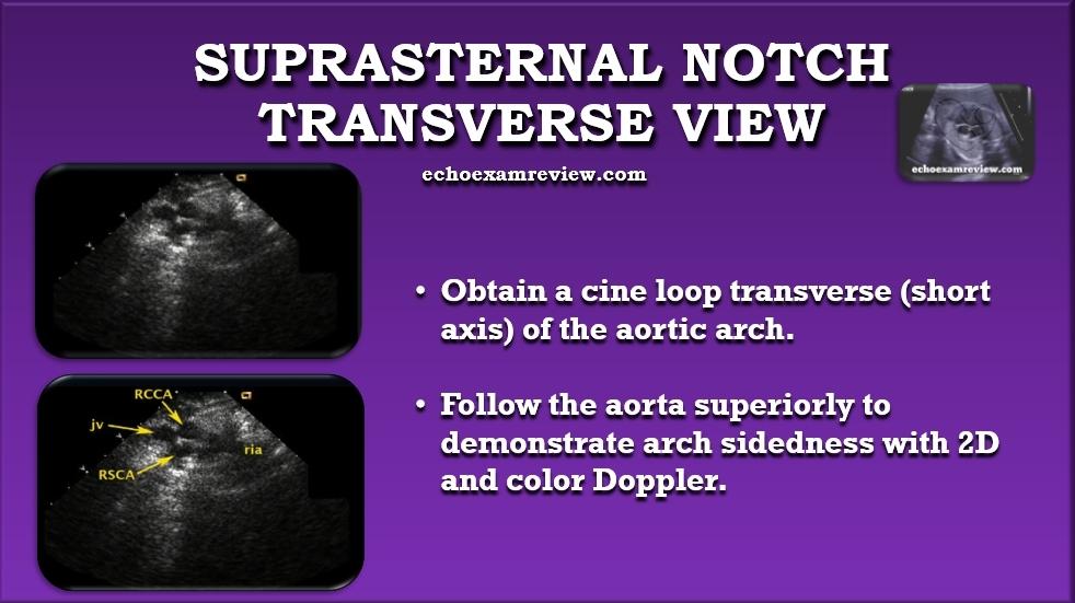 Suprasternal Transverse Aortic Arch View