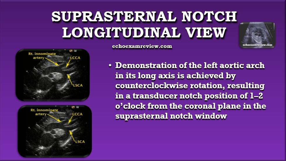Suprasternal Longitudinal Aortic Arch View