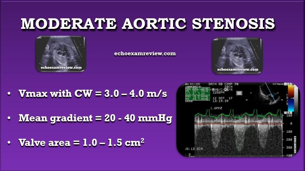 Moderate Aortic Stenosis