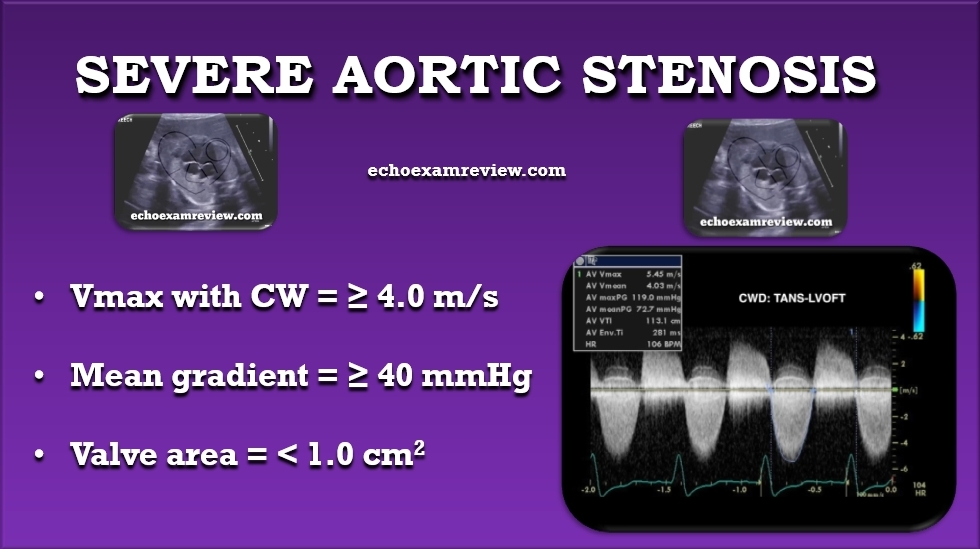 Severe Aortic Stenosis