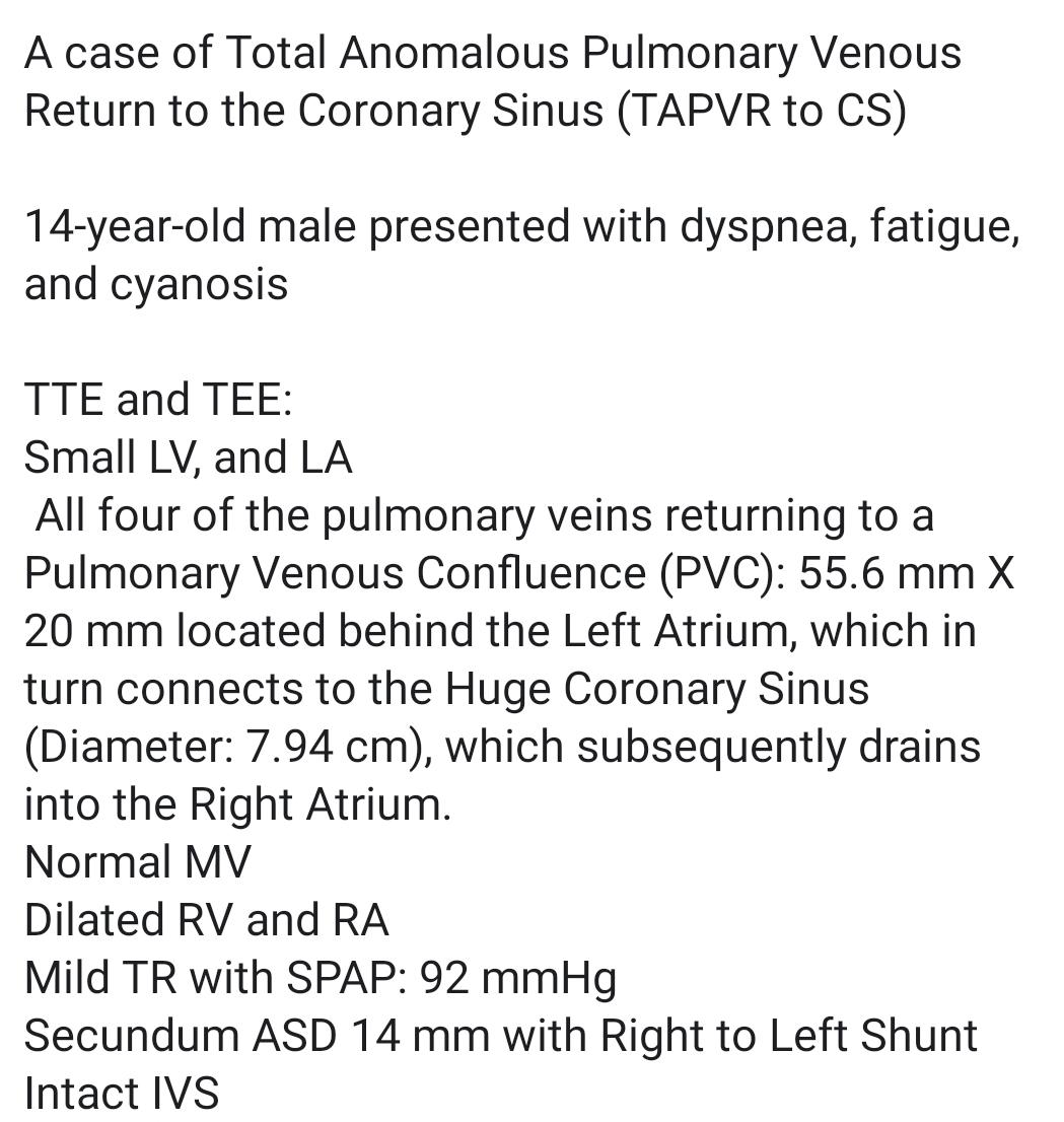 Total Anomalous Pulmonary Venous Return Cardiac Type