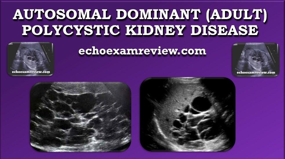 Autosomal Dominant (Adult) Polycystic Kidney Disease