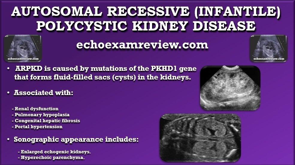 Autosomal Recessive (Infantile) Polycystic Kidney Disease