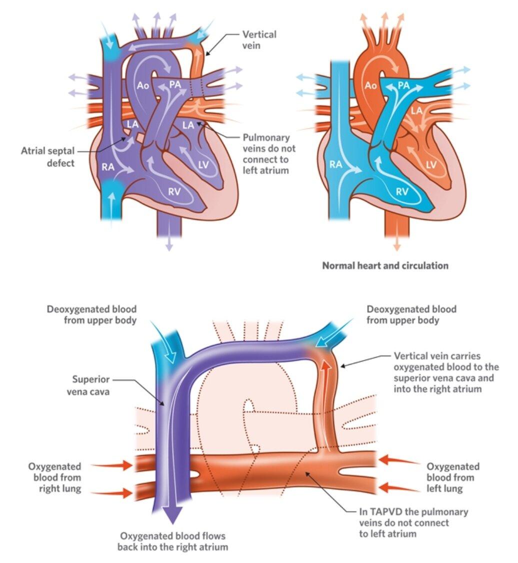 Total Anomalous Pulmonary Venous Return Supracardiac Type