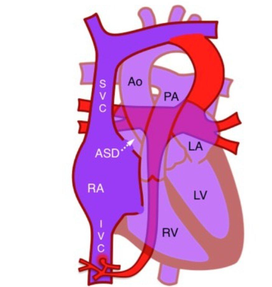 Total Anomalous Pulmonary Venous Return Mixed Type