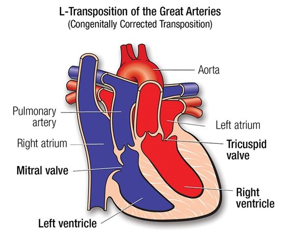 Corrected Transposition of the Great Arteries. Levotransposition of the Great Arteries