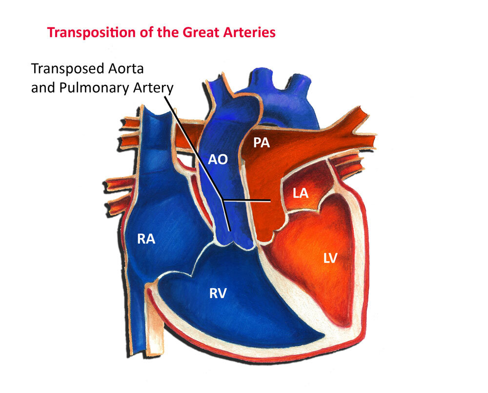 Dextrotransposition of the Great Arteries (d-TGA)