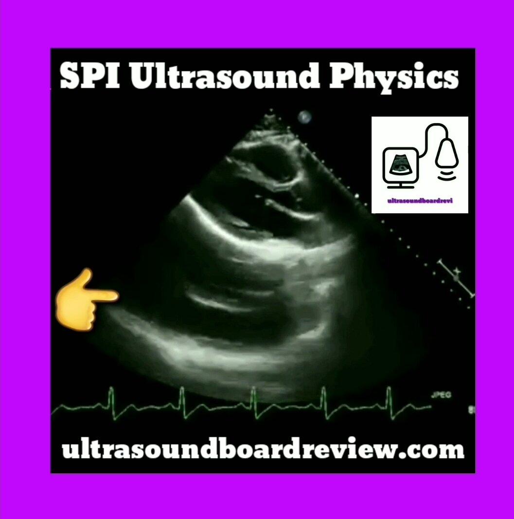Mirror Artifact    Ultrasound Physics