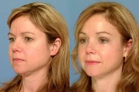 facial sagging 7.jpg