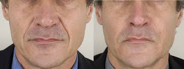 lines and wrinkles 6.jpg