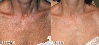 neck & chest 1.jpg