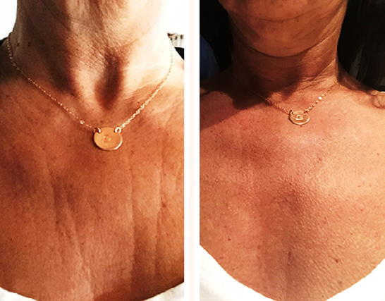 neck & chest 4.png