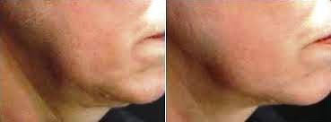 neck & chest 6.jpg