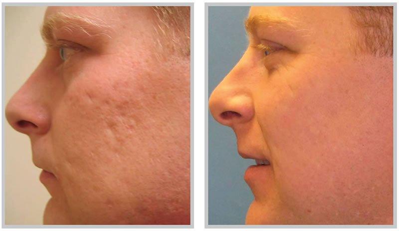 ba-acne-scar-j.jpg