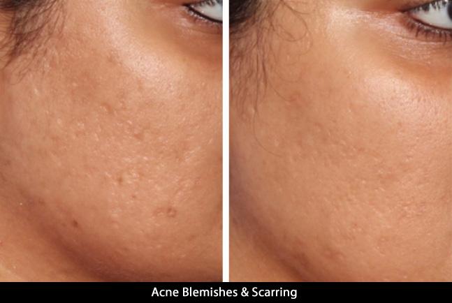 acne5_2017.jpg
