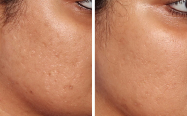 ba-acne-scar-x.jpg