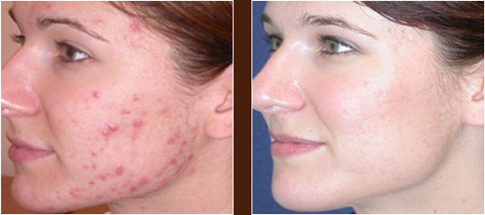ba-acne-t.jpg