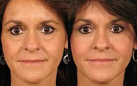 face shape and conturing 6.jpg