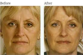 face shape and conturing 7.jpg