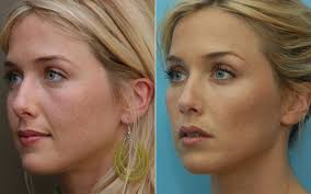 face shape and conturing 9.jpg