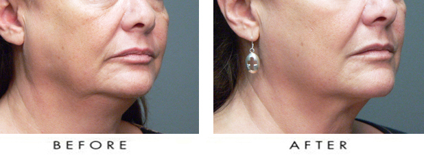 facial sagging 2.jpg