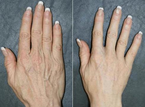 hands 3.jpg