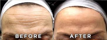 lines and wrinkles 9.jpg