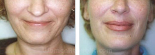 ba-2-treatment-97lip-augmentation06.jpg