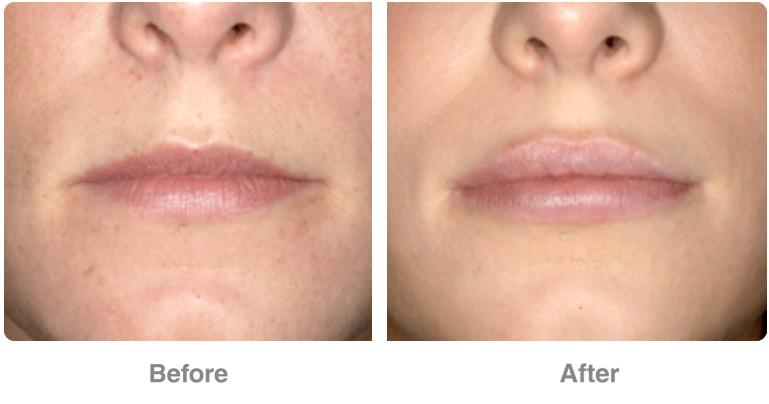 ba-before-after-permalip1.jpg
