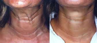 neck & chest 2.jpg