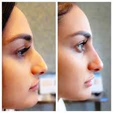 nose shape 2.jpg