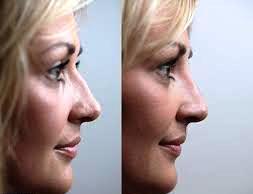 nose shape 1.png